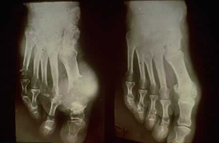 X-ray of gout deposit in the big toe.