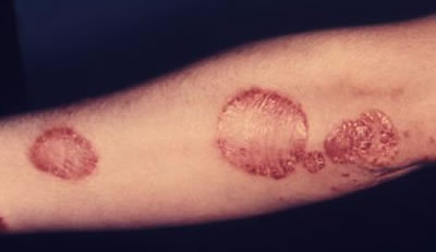 infected psoriasis treatment