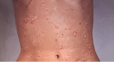 psoriasis trunk Topical Agents Commonly Used With UV Light Therapy For Psoriasis