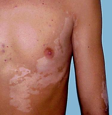 vitiligo Vitiligo Fraxel Laser